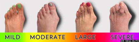 Surgery-Bunion-Scale-of-Bunions-Bunion-Surgery-NY